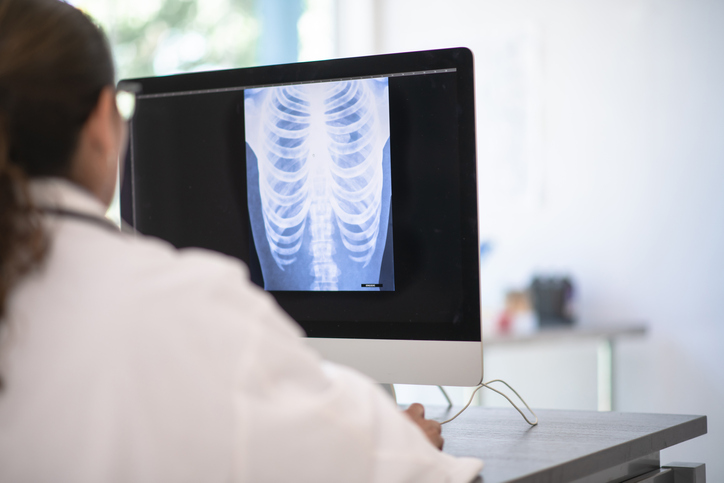 A doctor sits at their desk and looks at an x-ray of someone's chest. They are in a bright sterile office.