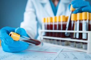 Ask Dr. Taylor: SARS-CoV-2 Antibody Testing